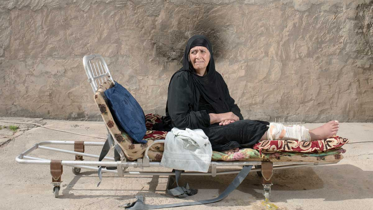 An injured civilian woman in Mosul rests on a bed